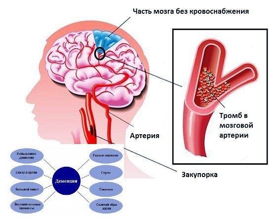 Деменция у взрослых